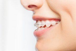 braces 101