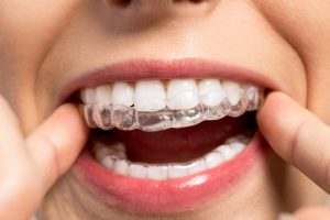 Orthodontist in Little Elm, TX | Bracify 3D Orthodontics